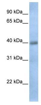 Western blot - TXNDC15 antibody (ab105648)