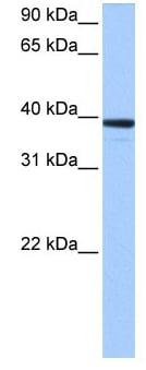 Western blot - MRM1 antibody (ab105649)