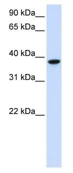 Western blot - GLT8D2 antibody (ab105655)