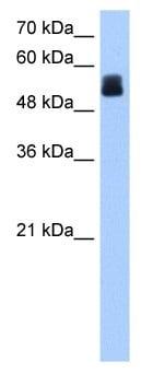Western blot - CRISPLD2 antibody (ab105656)