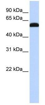 Western blot -  ZGPAT antibody (ab105663)