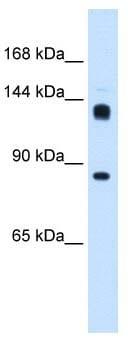 Western blot - hunchback antibody (ab105674)