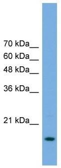 Western blot - RPP20 antibody (ab105680)