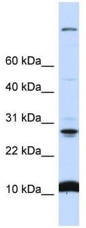 Western blot - C19orf56 antibody (ab105681)