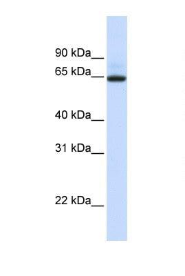 Western blot - UGT1A7 antibody (ab105685)