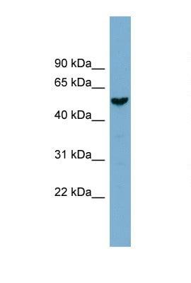 Western blot - FAM83E antibody (ab105689)