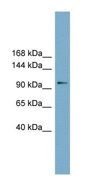 Western blot - FTSJD1 antibody (ab105699)