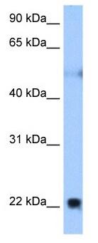 Western blot - Nogo antibody (ab105707)