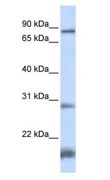 Western blot - SMYD4 antibody (ab105710)