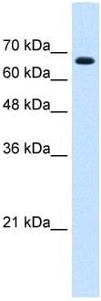 Western blot - ZNF564 antibody (ab105719)