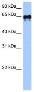 Western blot - Transglutaminase 6 antibody (ab105725)