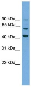 Western blot - Gamma-taxilin antibody (ab105726)