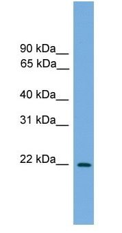 Western blot - JDP2 antibody (ab105735)