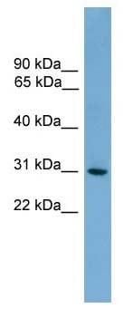 Western blot - HLA-DQA2 antibody (ab105759)