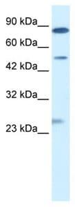 Western blot - CLIC6 antibody (ab105786)