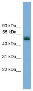 Western blot - CCDC76 antibody (ab105788)