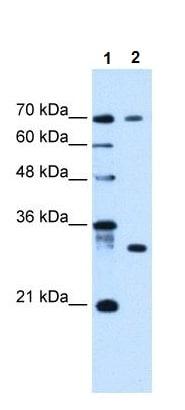 Western blot - ATP6AP1L antibody (ab105812)