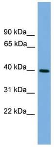 Western blot - ITLN2 antibody (ab105870)