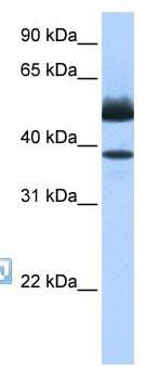 Western blot - LIPJ antibody (ab105871)