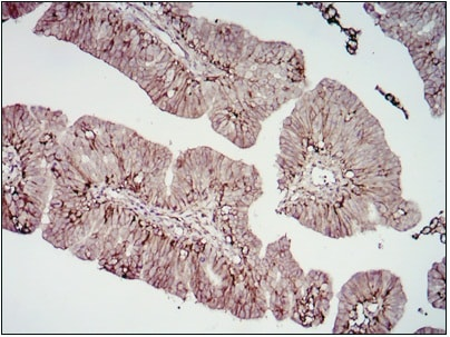 Immunohistochemistry (Formalin/PFA-fixed paraffin-embedded sections) - CD276 antibody [6A1] (ab105922)