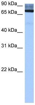 Western blot - ADAD2 antibody (ab105956)
