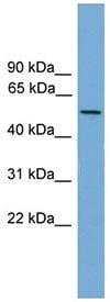 Western blot - EFCAB3 antibody (ab106116)