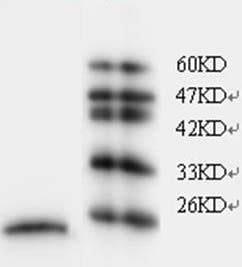 Western blot - FKBP11 antibody [5] (ab106198)