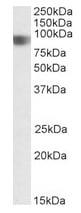 Western blot - CARD4 antibody (ab106233)