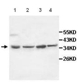 Western blot - IL10RB antibody (ab106282)