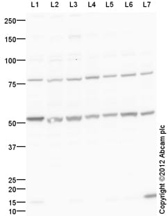 Western blot - Anti-Cdk8 antibody (ab106320)