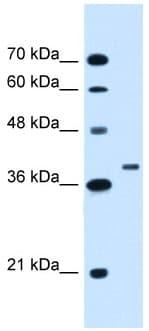 Western blot - RNF146 antibody (ab106334)