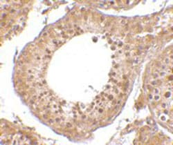 Immunohistochemistry (Formalin/PFA-fixed paraffin-embedded sections) - RGPD5 antibody (ab106360)