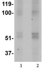 Western blot - FTO antibody (ab106386)