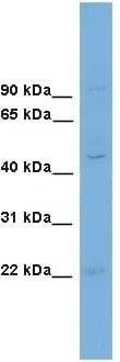 Western blot - FLJ30934 antibody (ab106593)