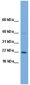 Western blot - C7orf16 antibody (ab106598)