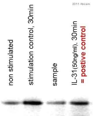 Western blot - IL31 protein (ab106619)