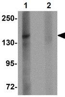 Western blot - ZMYM1 antibody (ab106623)