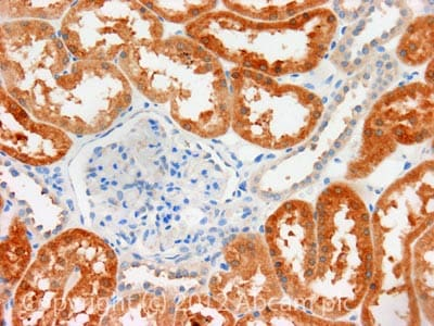Immunohistochemistry (Formalin/PFA-fixed paraffin-embedded sections) - Anti-GRK6 antibody (ab106673)
