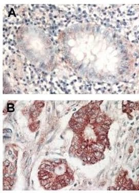 Immunohistochemistry (Formalin/PFA-fixed paraffin-embedded sections) - AKT1/2/3 antibody (ab106693)