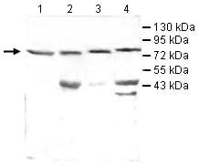 Western blot - VCAM1 antibody (ab106777)