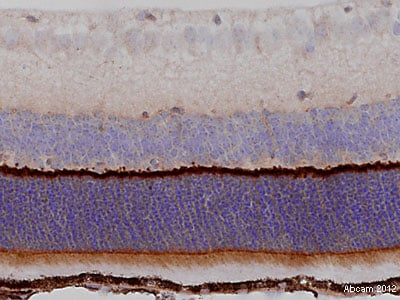 Immunohistochemistry (Formalin/PFA-fixed paraffin-embedded sections) - Anti-MPP4 antibody (ab106848)