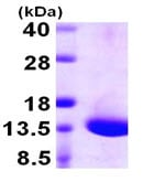 SDS-PAGE - DYNLT1 protein (ab106872)