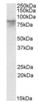 Western blot - AFM antibody (ab106931)