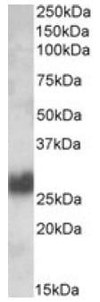 Western blot - CD90 / Thy1 antibody (ab106934)