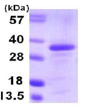 SDS-PAGE - Borealin/CDCA8 protein (His tag) (ab107144)