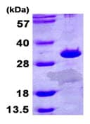 SDS-PAGE - ETFB protein (ab107152)
