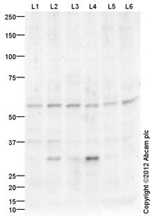Western blot - Anti-MYLIP antibody (ab107168)