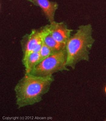 Immunocytochemistry/ Immunofluorescence - Anti-Phospholipase C gamma 1 antibody (ab107455)