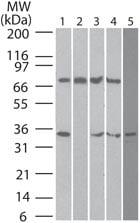 Western blot - DECTIN 2 antibody [IMG3D1] (ab107572)