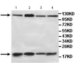 Western blot - AGBL3 antibody (ab107590)